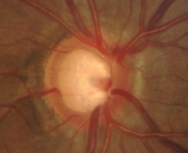 pe-glaucoma-01b
