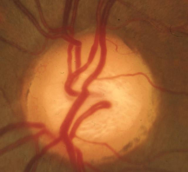 pe-glaucoma-02b