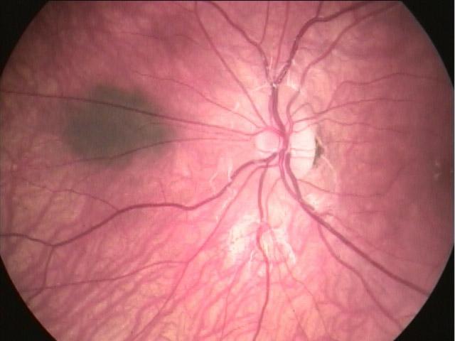 pe-ocular-02b
